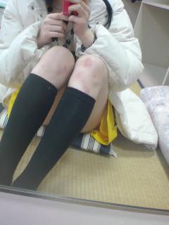 内腿のアザ
